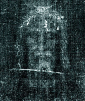 Shroud of Turin: Medical Aspects of the Crucifiction